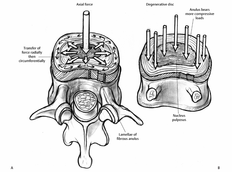 Pathophysiology and Etiology of Intervertebral Disc