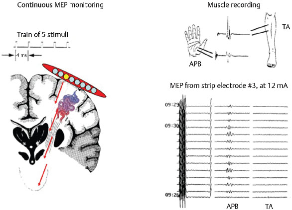 Intraoperative Neurophysiological Monitoring during Surgical and