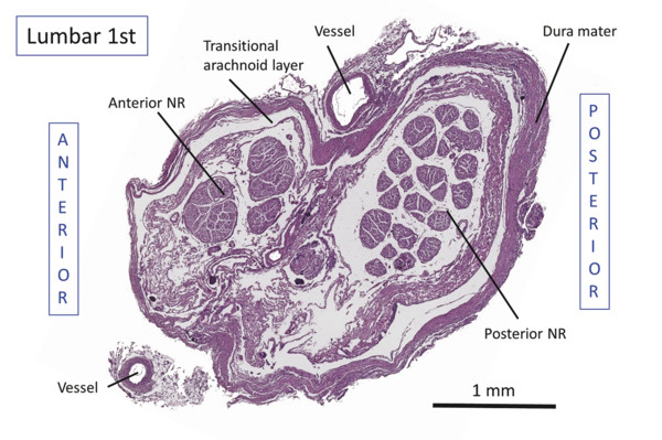 Transverse cross-section of nerve root cuff between the dural sac and dorsal root ganglion at first lumbar vertebral level. The image shows the anterior and posterior nerve roots, each enveloped by a