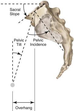 Surgical Management of Degenerative Lumbar Scoliosis | Neupsy Key