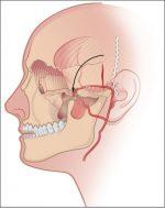 Chapter 37 Pericranial and Temporoparietal Fascia Flaps