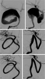 19 MANAGEMENT OF ANEURYSM RESIDUALS FOLLOWING TREATMENT WITH FLOW DIVERTERS