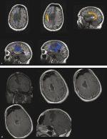 10 Frontal Lobe Gliomas