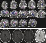 13 Parietal and Occipital Gliomas