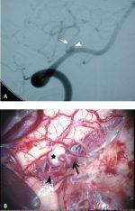 Posterior Inferior Cerebellar Artery Aneurysms