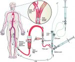 Carotid Angioplasty and Stenting