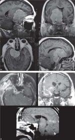 24 Clinoidal Meningiomas