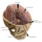 40 Craniopharyngiomas