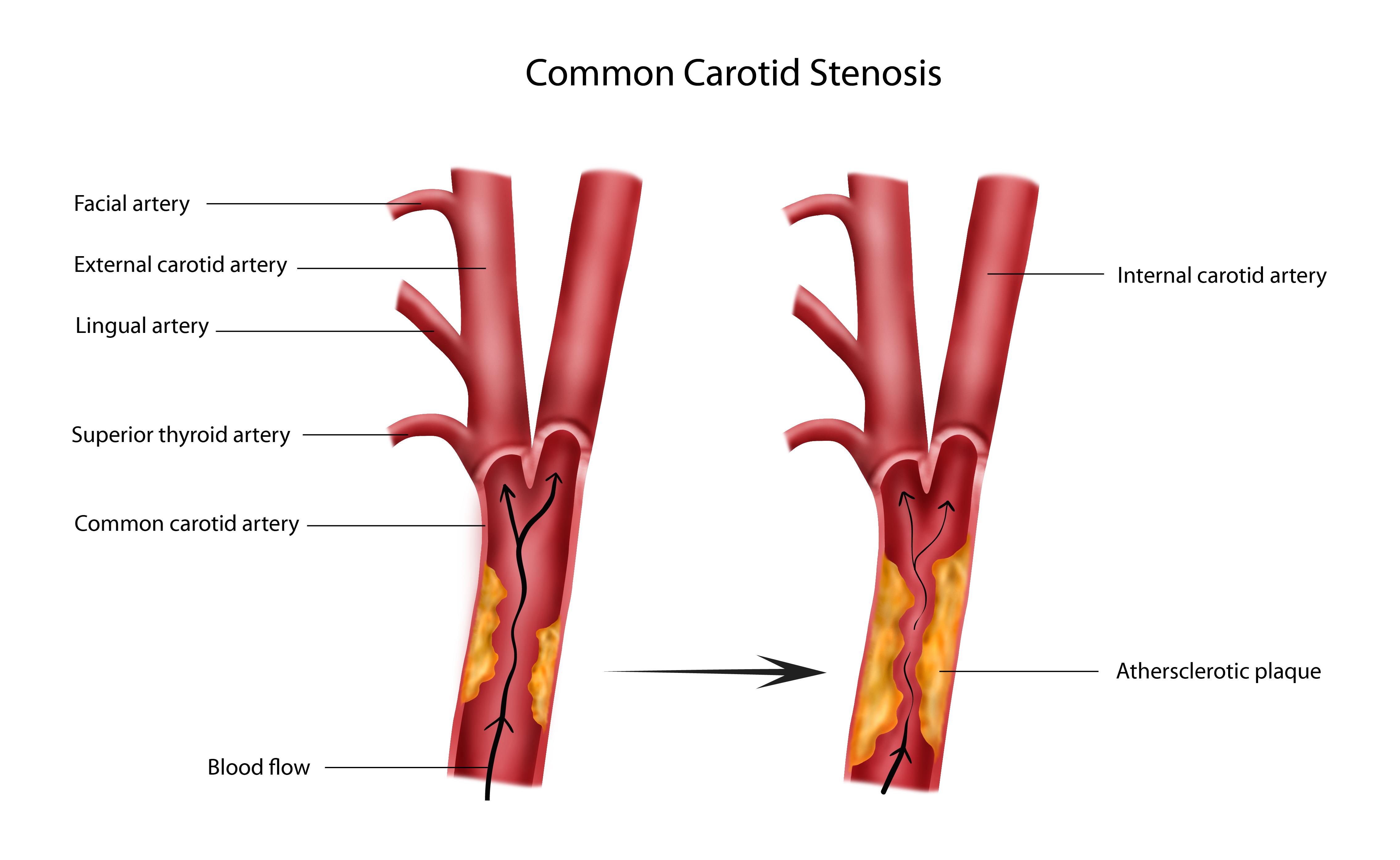Stenosis Stenosis Artery