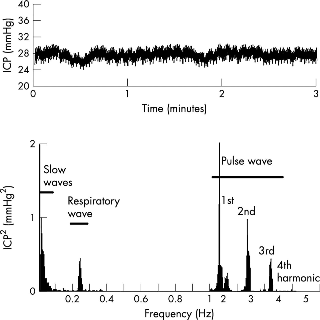 Neurocriticalcare Icp Waveformysis