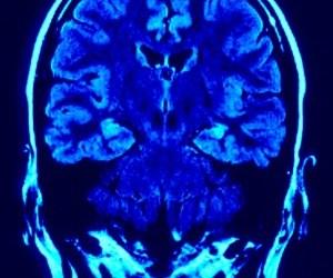 El mal del cerebro (2012)