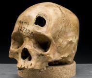 1 Skull_sword_trauma WIKIMEDIA COMMONS