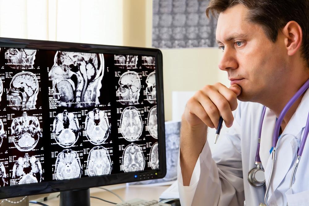 Отек головного мозга на снимке