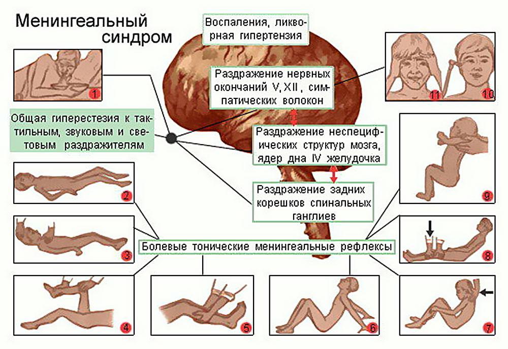 Диагностика менингита у детей в домашних thumbnail