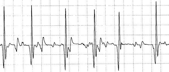 EMG: Denervation