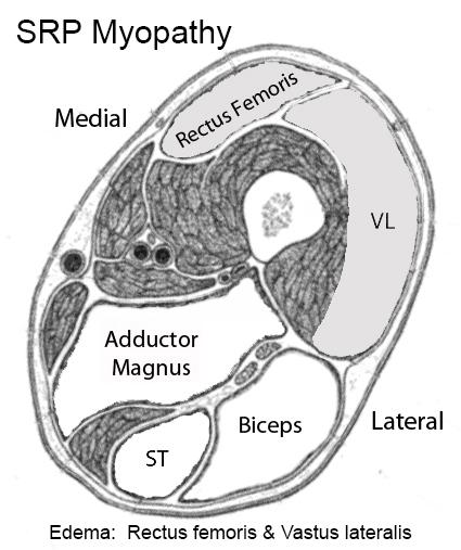 Muscle MRI