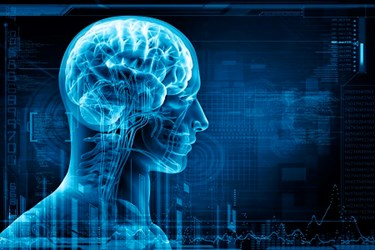 Artificial Intelligence Could Aid Earlier Diagnosis Of Alzheimer's