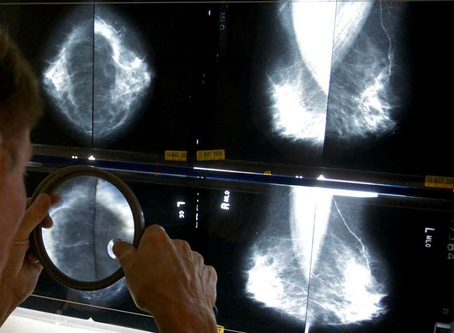 Houston invention: Artificial Intelligence to read mammograms