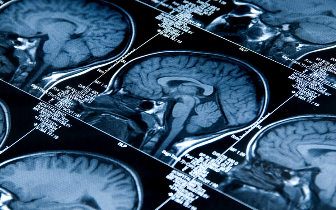 Grand project to unify global efforts to understand the brain