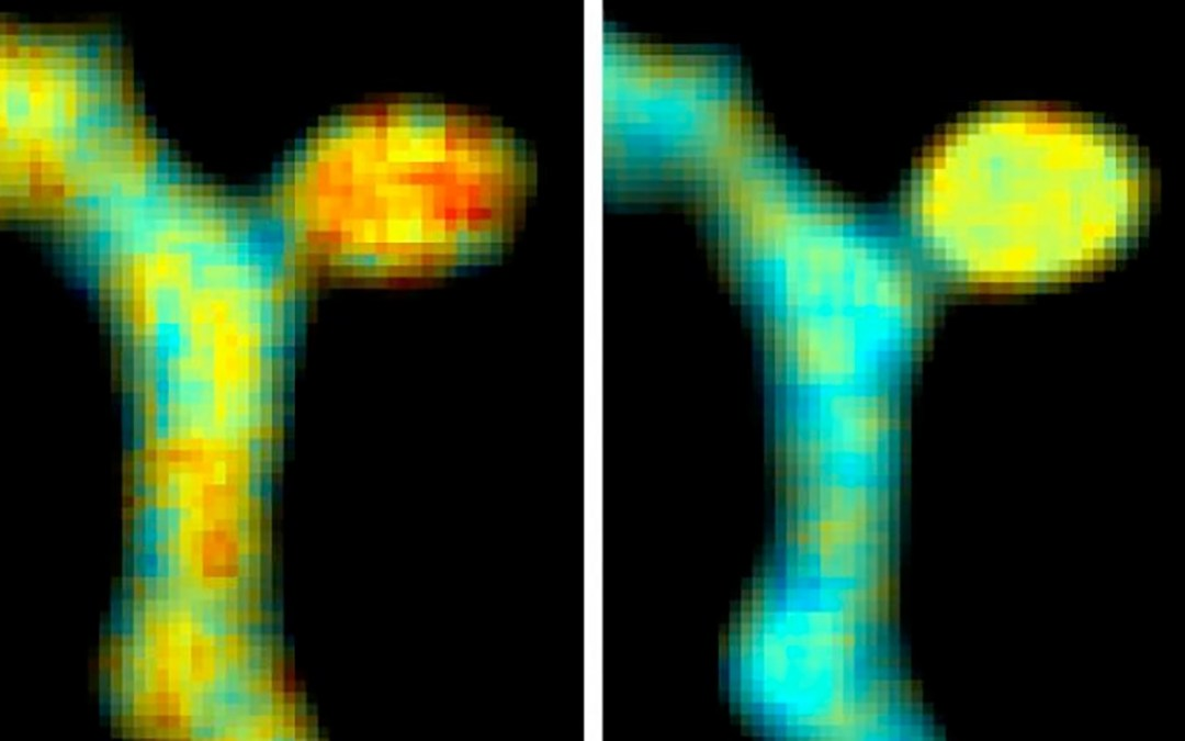 FRET-FLIM Optimization Shows Activity of Two Signalling Molecules in Single Dendritic Spine