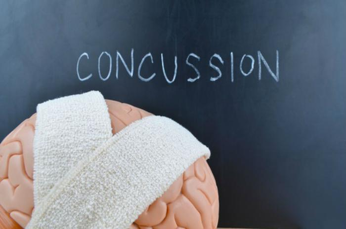Artificial intelligence may help detect long-term concussions in athletes