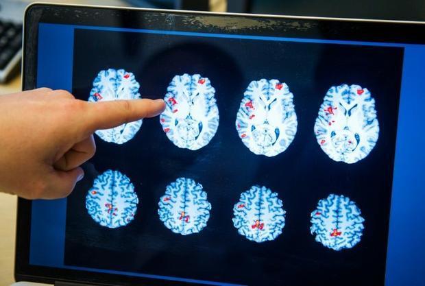 Applying artificial intelligence to identify schizophrenia