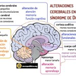 El cerebro en el síndrome de Down