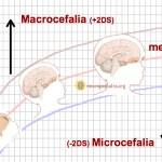 Cuando la cabeza es grande: macrocefalia