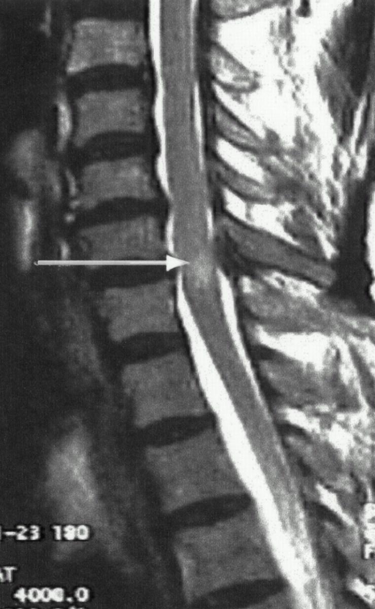 Mielopata cervical espondiltica  Neuro  Spine de Nayarit