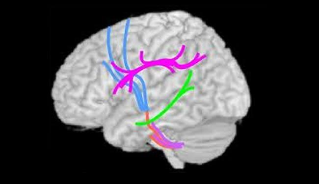 autism-brain-scans