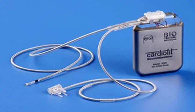 cardiofit-nerve-stimulation-implant-heart-failure