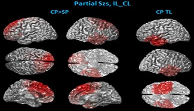 epilepsy-brain-scans-frontal-lobe
