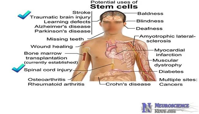 First Clinical Trial Of Human Embryonic Stem Cell Therapy