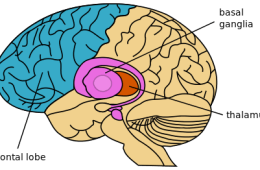 The image shows a computerized image of the brain with the basal ganglia, thalamus and frontal lobe highlighted.