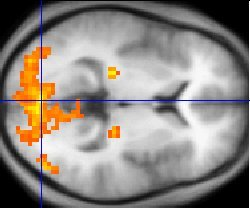 The FMRI image shows regions of activation including primary visual cortex (V1, BA17), extrastriate visual cortex and lateral geniculate body.
