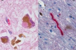 The image shows a histological sample of Substantia nigra in Parkinson's disease.