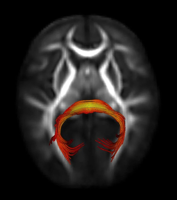 A brain scan is shown with a highlighted area