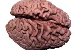 The image shows a plastinated Alzheimer's brain.