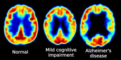 The image shows 3 PET scans of patients in different stages of Alzheimer's disease.