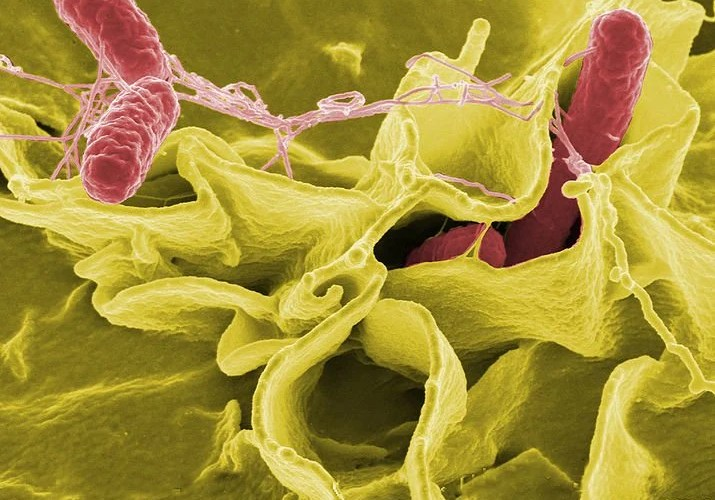 The image shows Salmonella typhimurium invading cultured human cells.