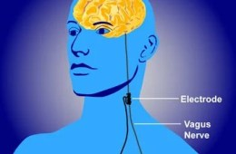 The image shows an implanted vagus nerve device.