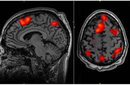 This is a fMRI image taken during working memory tasks.