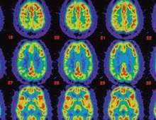 The image shows PET scans of a person's brain with Alzheimer's disease.
