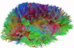 The image shows a mapped brain. The caption best describes the image.