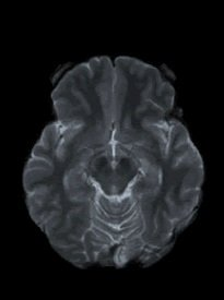 This is a brain scan of a person with Parkinson's disease.