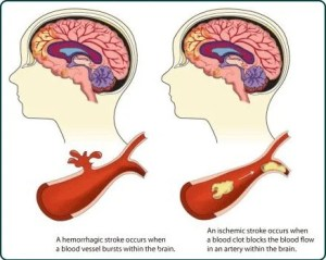 The diagram shows the different types of brain strokes.