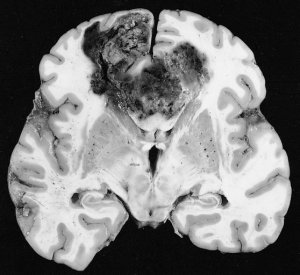 The image shows a brain slice with glioblastoma cancer.