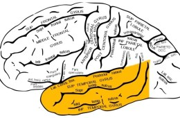 The brain diagram highlights the temporal lobe in yellow.