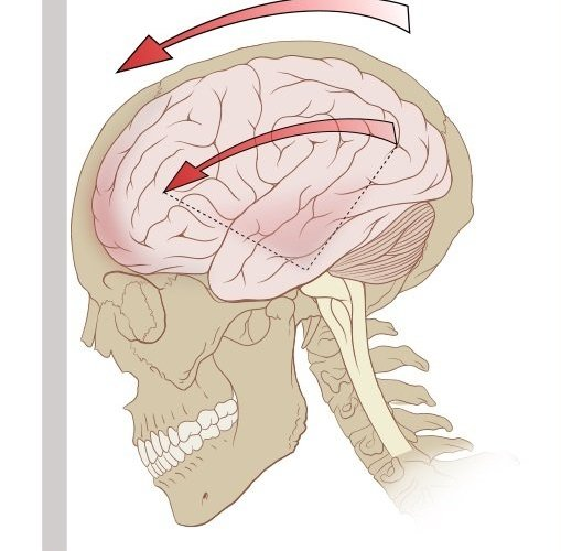 The image is a diagram of the forces on the brain in concussion.