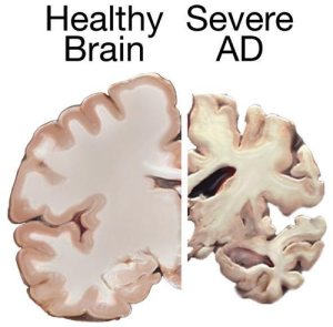 The image shows two different brain slices, one of a healthy brain and one of a brain with severe AD.